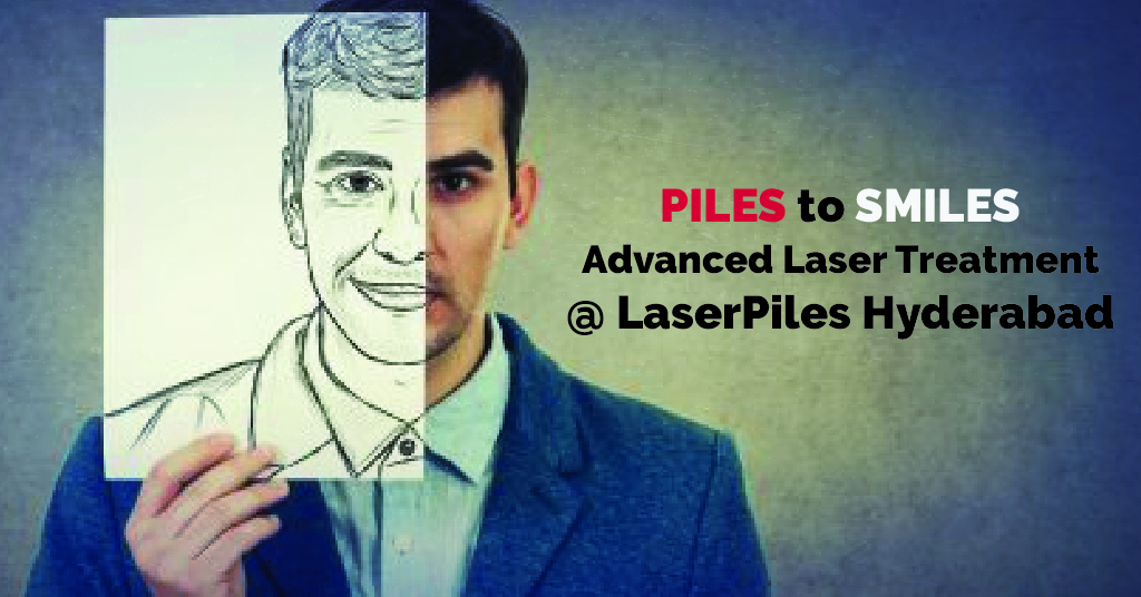 Piles to Smiles with Advanced Laser Treatment