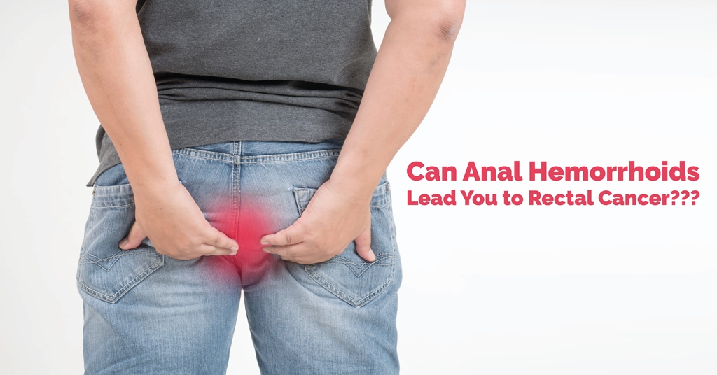 Can Anal Hemorrhoids Lead You to Rectal Cancer