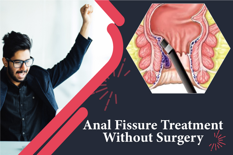 Anal Fissure Treatment without Surgery
