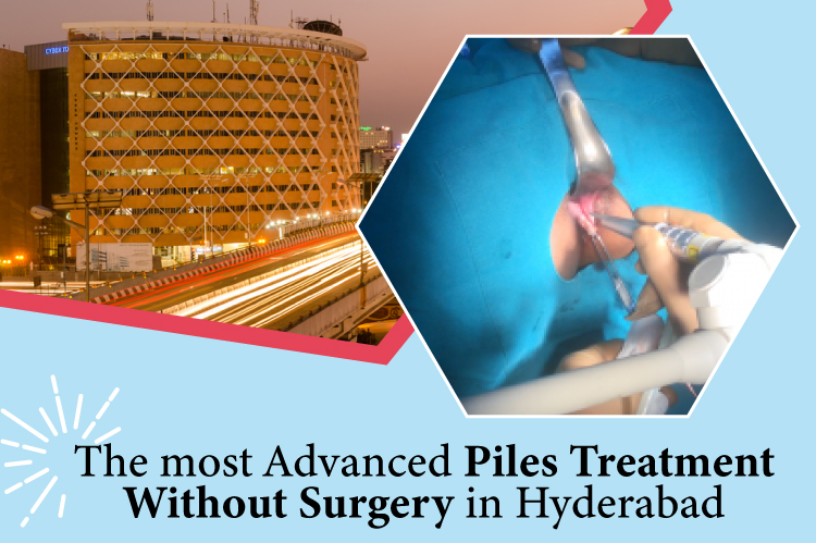The most advanced Piles Treatment without Surgery in Hyderabad