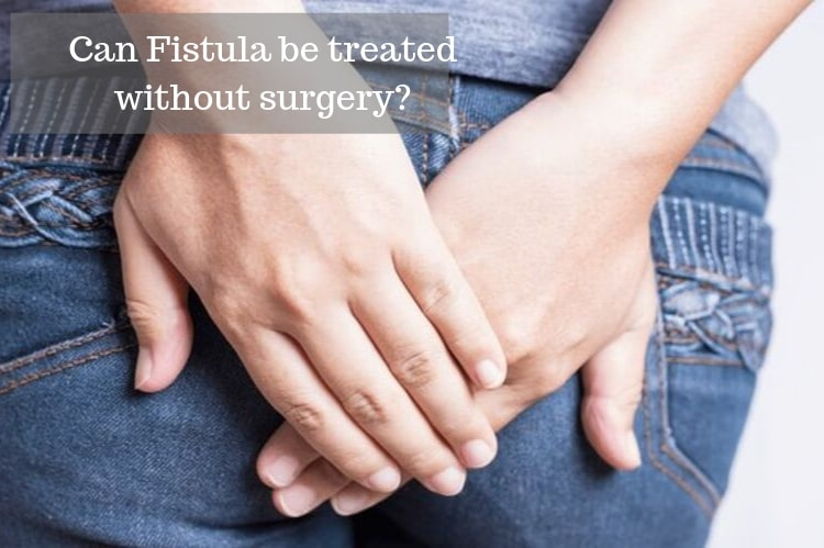 Can Fistula be Treated Without Surgery