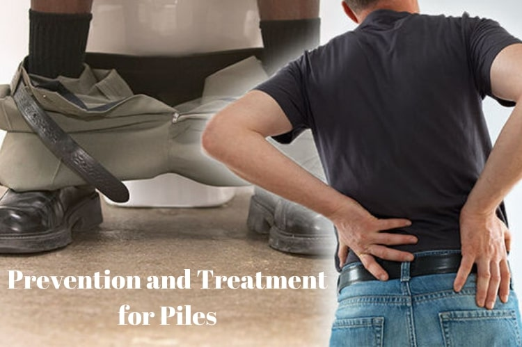 Prevention and Treatment for Piles