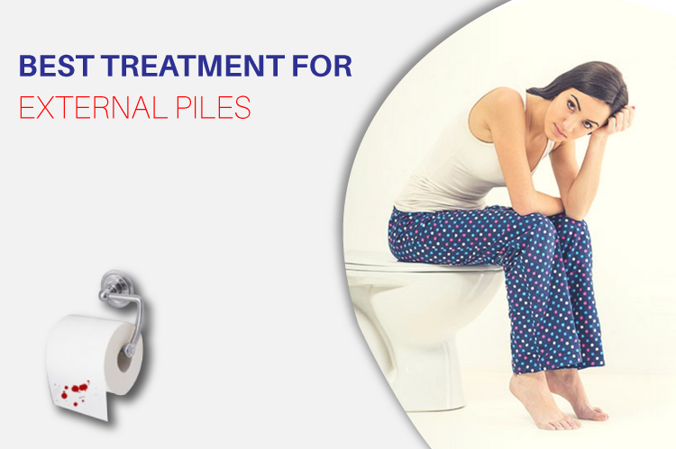 Best Treatment for External Piles/Hemorrhoids