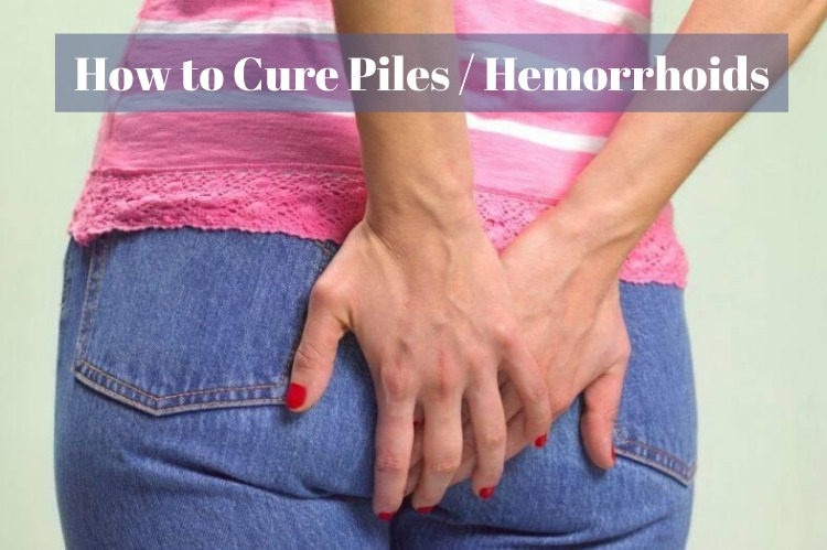 How to Cure Piles or Hemorrhoids Naturally