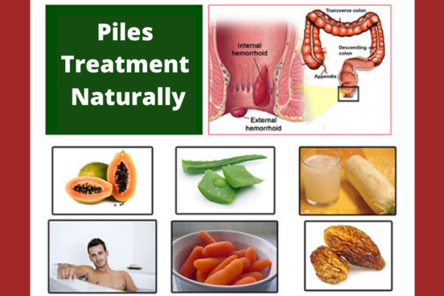 Which Treatment is Best for Piles Naturally?