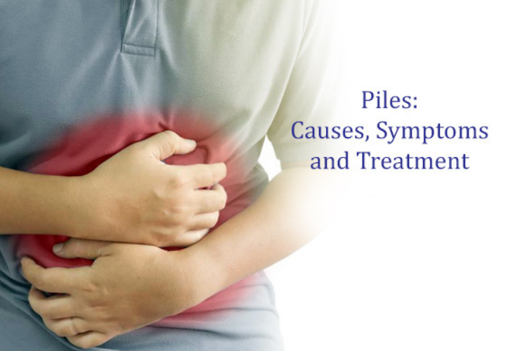 What is Piles Cause, Symptoms and Treatment