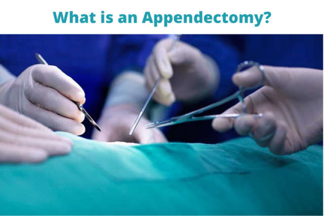 What is an Appendectomy? Surgery and Recovery