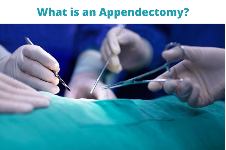 What is an Appendectomy