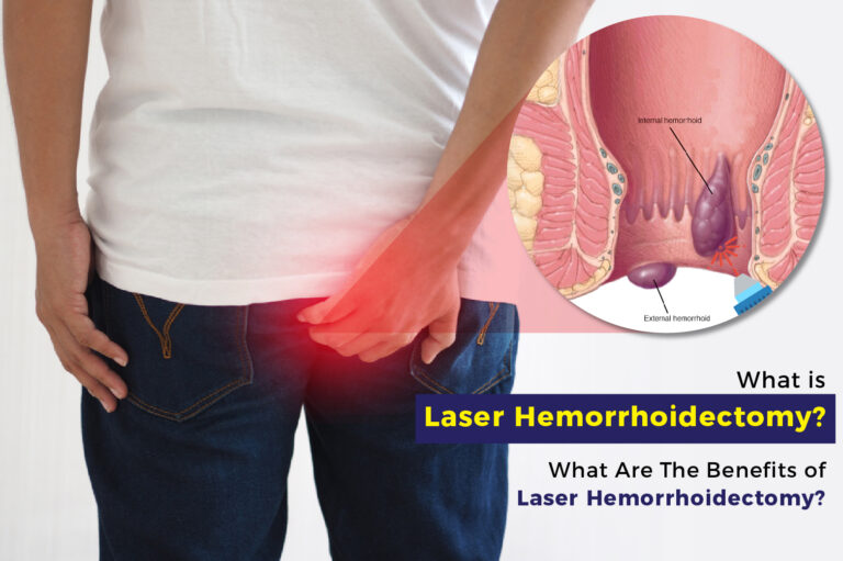 What is Laser Hemorrhoidectomy? What are the Benefits of Laser Hemorrhoidectomy?