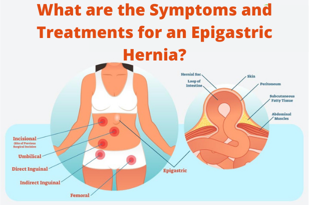 What are the Symptoms and Treatments for an Epigastric Hernia?