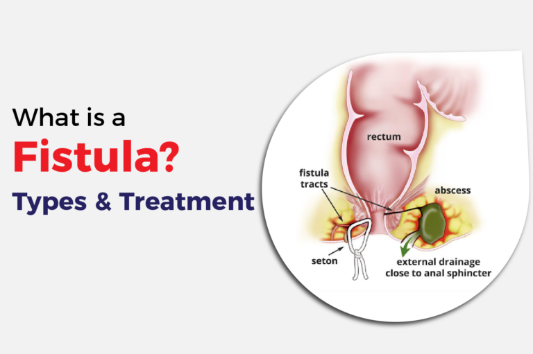 What is a Fistual? Types and Treatment