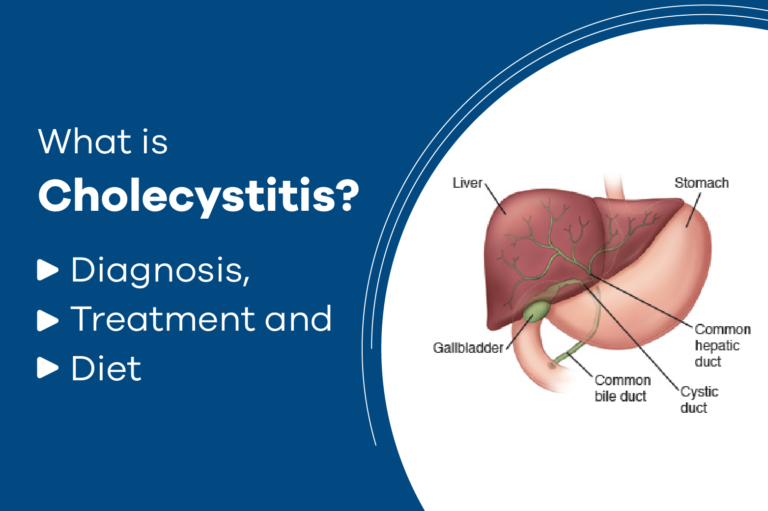 What is Cholecystitis? Diagnosis, Treatment and Diet