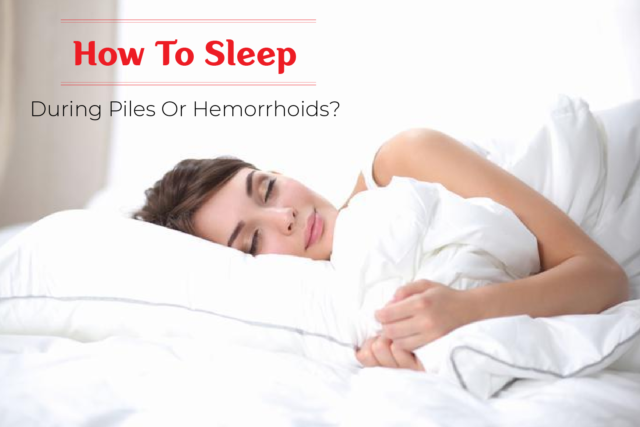 How to Sleep During Piles or Hemorrhoids?
