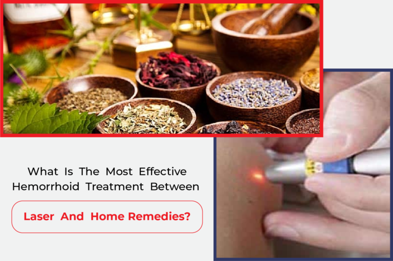 What is the most effective hemorrhoid treatment between laser and home remedies?