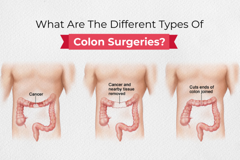 What Are The Different Types Of Colon Surgeries?