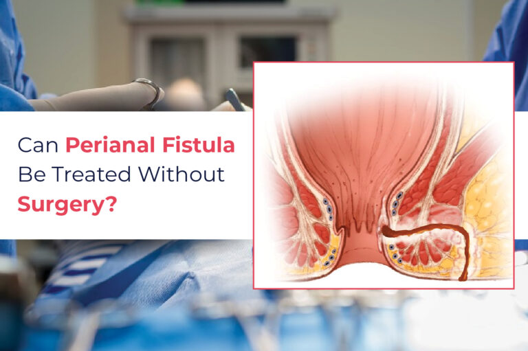 Can perianal fistula be treated without surgery?